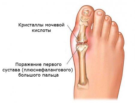 Болит сустав большого пальца на ноге по разным причинам