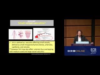Гранулематоз с полиангиитом (Гранулематоз Вегенера)- dr. Selen Bayraktaroğlu