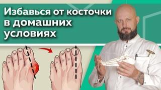 Как избавиться от шишки на ноге? / Эффективные упражнения для восстановления суставов