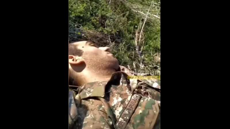 18 🇦🇿🇦🇲Азербайджанский солдат которого ранили во время близкого боя Да хоть они и ранили меня я их всех уничтожил Вдоль д