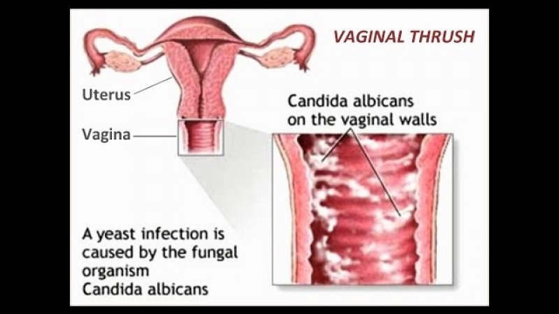 5 Home Remedies for Vaginal Thrush.