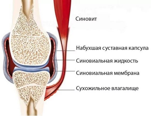 Гормон для лечения остеопороза