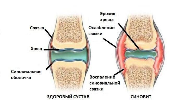 Лечение остеохондроза в дзержинске