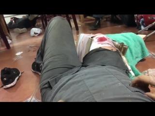 The pain is unbearable says this medical student who was shot through the leg today and le