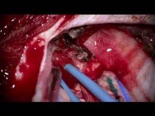 Хирургическое лечение низкодифференцированных объемных образований головного мозга