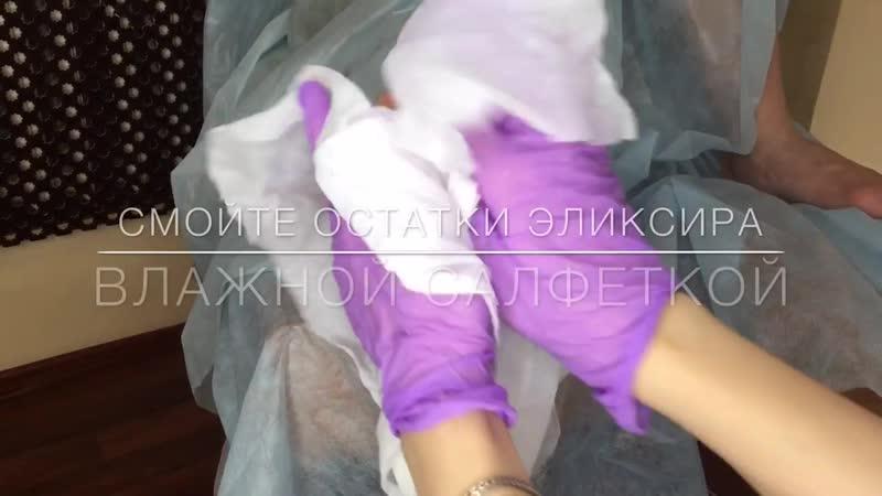 3 Эликсир для стоп обработка гиперкератоза