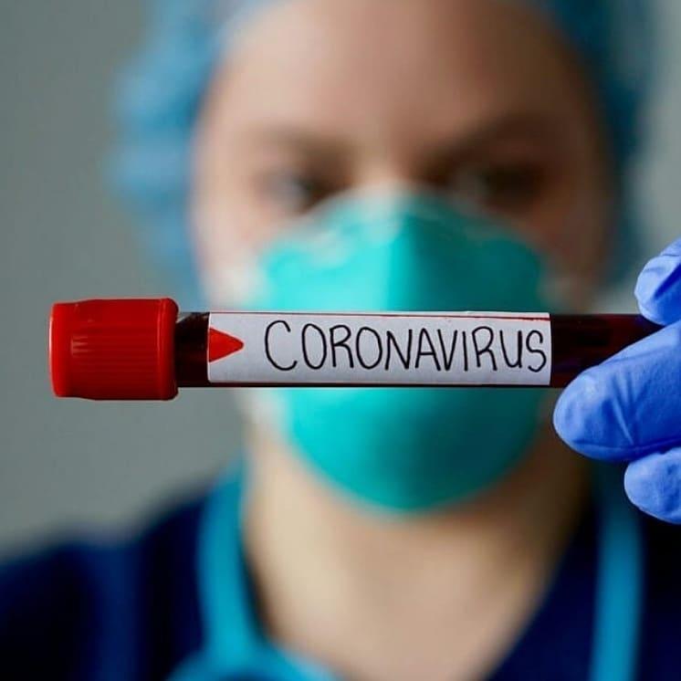 В Саратовской области на 10 часов 00 минут 21 апреля лабораторно подтверждены ещё 26 случаев заболевания коронавирусной инфекцией