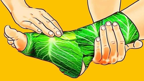 Можно ли лечить суставы капустным листом