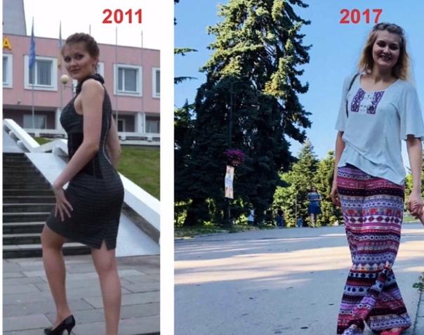 Как Похудеть В Москве Если Нет Денег. 30 способов, как похудеть естественным способом без диеты и убрать живот без упражнений в домашних условиях