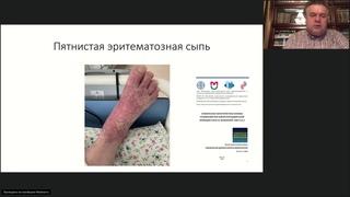 Основы ведения пациентов с COVID 19. Лекция д.м.н., профессора А.С. Белевского